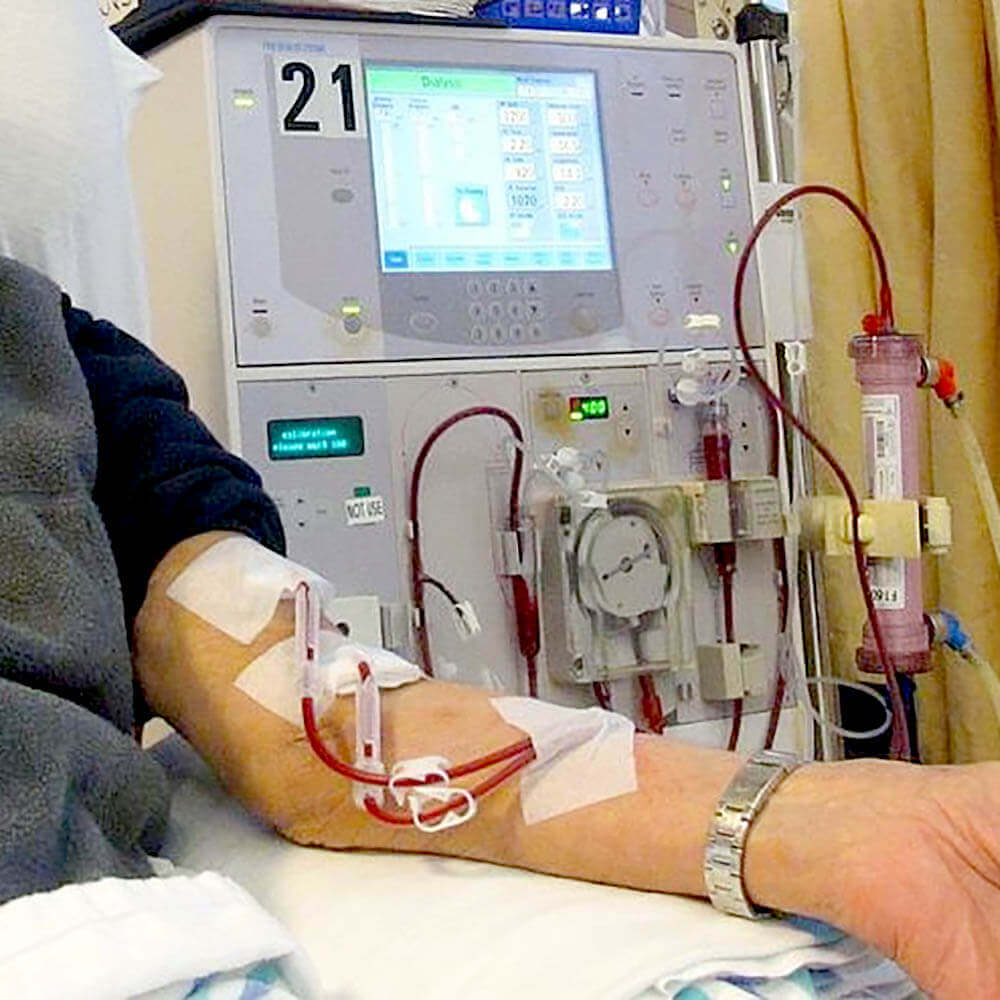 A patient receiving dialysis treatment